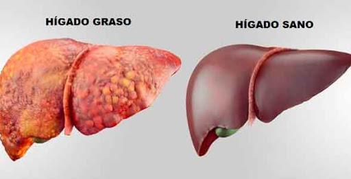 Especialista en hígado graso en Oaxaca