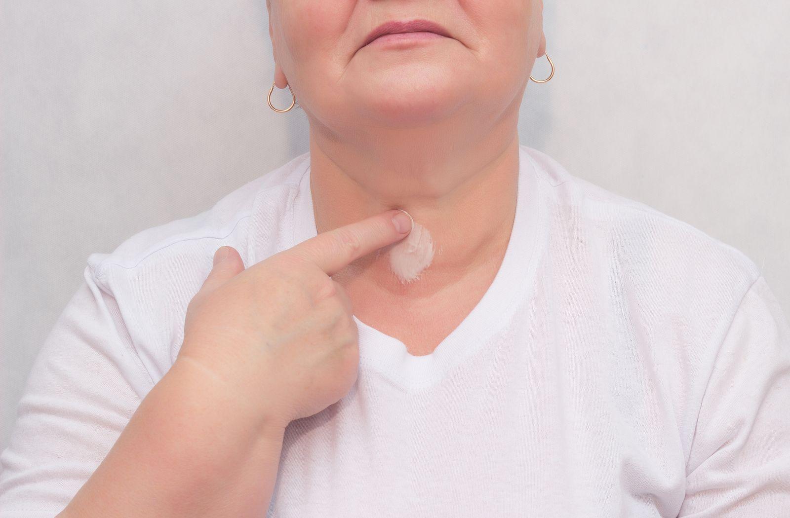 Especialista en tiroides en Oaxaca